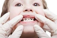 Кариес зубов у детей