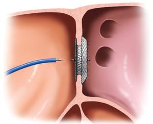 Катетеризация сердца оценивает состояние сердечных структур, давление в сердечных камерах