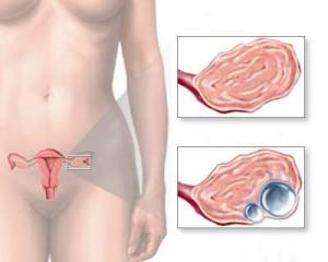 яичник нормальный и кистозный