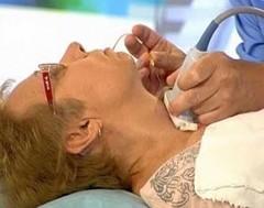 Диагностика коллоидной кисты щитовидной железы