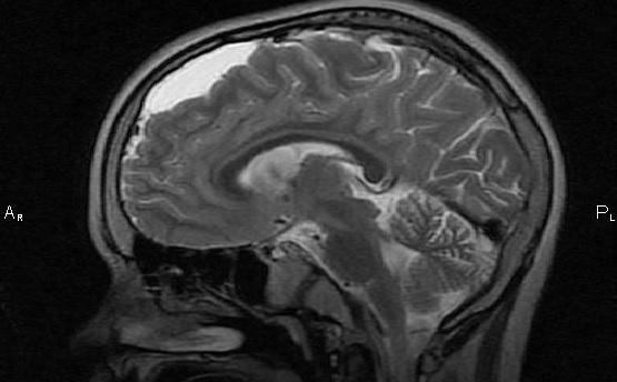 Признаки кисты головного мозга