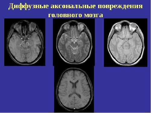 Диффузно-аксональное повреждение головного мозга