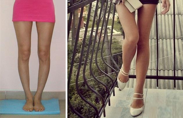 Как из кривых ног сделать ровные