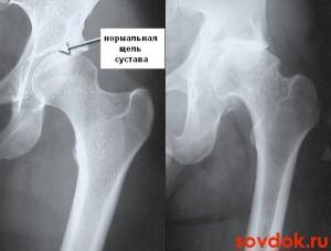 коксартроз и нормальный сустав