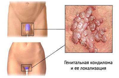 Кондилома генитальная