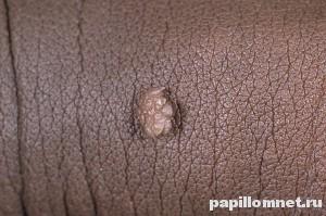 Фото кондиломы на коже, причиной появления является вирус папилломы человека