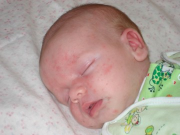 Контагиозный моллюск у ребёнка