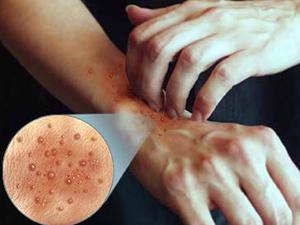 контактный дерматит на коже