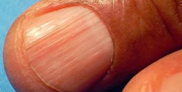 проявление болезни на ногтях