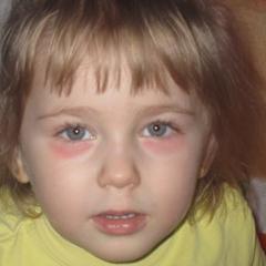 Краснота под глазами у ребенка