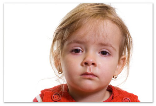 Повышенное слезоотделение у малышки