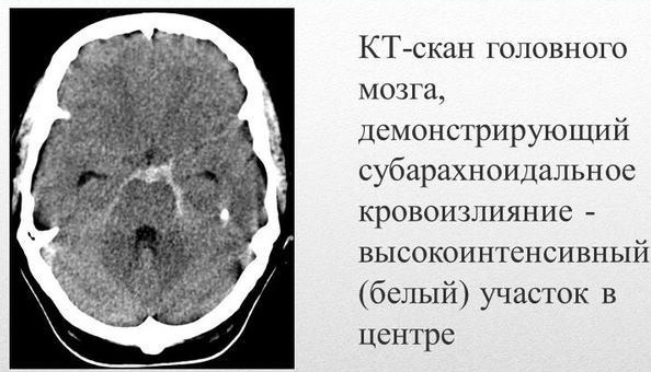 Субарахноидальное кровоизлияние в мозг