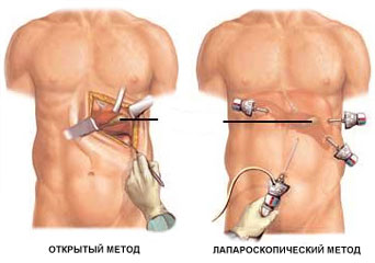 Два метода лечения