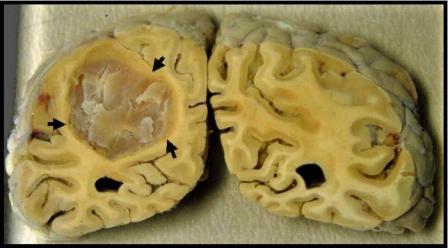 Профилактика рака мозга