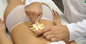 Схема правильного лечения воспаления седалищного нерва