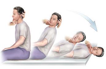 пароксимальное головокружение лечение