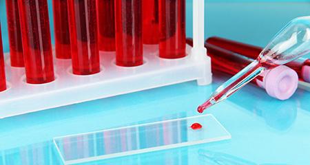 Повышены лейкоциты в крови при беременности: возможные причины