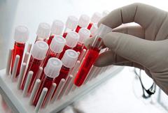 Лейкоциты в общем анализе крови