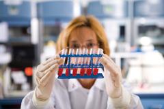 Анализ крови - лейкоцитарная формула