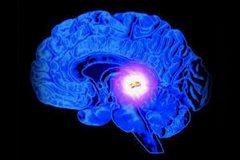 Ликворная киста мозга
