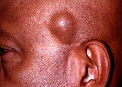 Фото жировика, который образовался на лице человека
