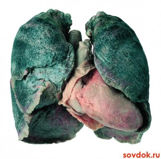 лёгкие патологически изменённые