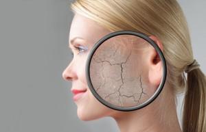 Хороший рецепт маски для сухой кожи