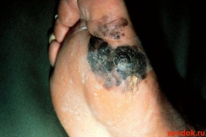 меланома на стопе