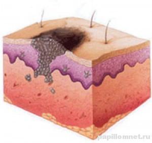 Схематичное изображение расположения меланомы на коже