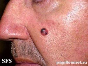 Фото меланомы на лице