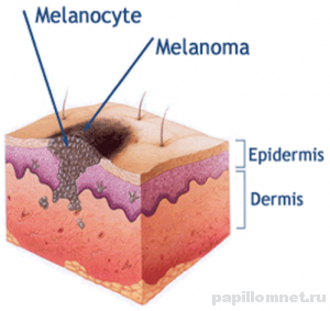 Схема проявления меланомы на участке дермы
