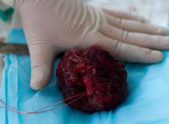 Менингиома лобной доли головного мозга