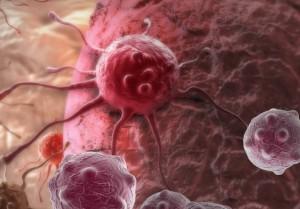 Метастазы при раке желудка