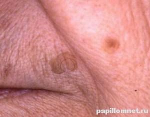 Фото метастазы меланомы на лице