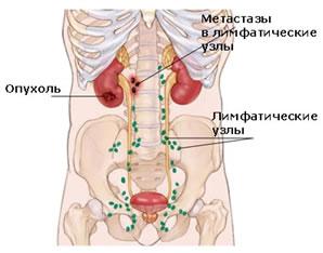 Опухоль и метастазы