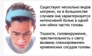 Проявления мигрени