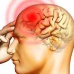 мигрень и головной мозг
