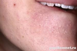 Фото милиумов на лице, которые были подвержены лечению
