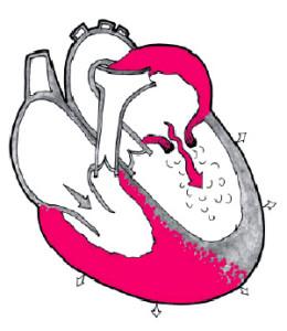 Заболевание характерно сужением левого предсердно-желудочкового отверстия