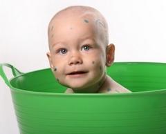 Можно ли купаться при ветрянке ребенку?