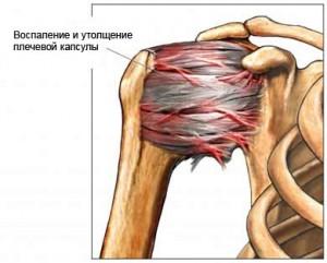 воспаленный сустав