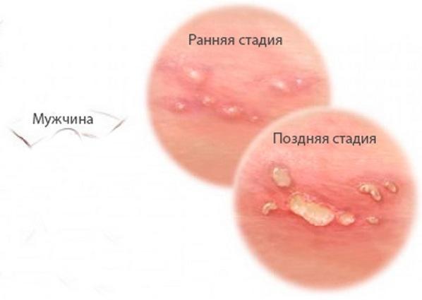 ранняя и поздняя стадия болезни