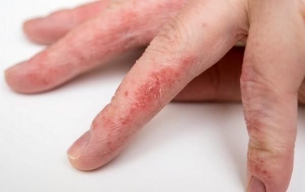 картинка псориаз на пальцах рук