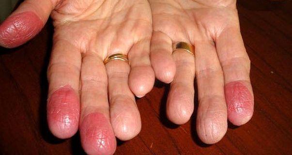 контактный дерматит на пальцах