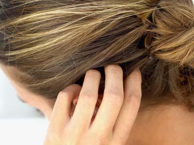 волосы, псориаз