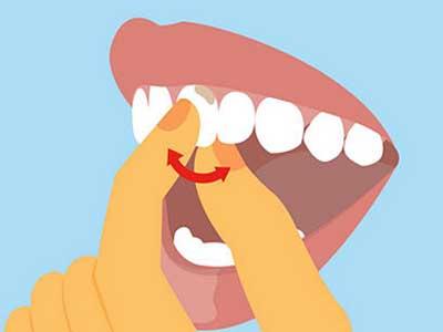 Как сделать чтобы не шатался зуб 977