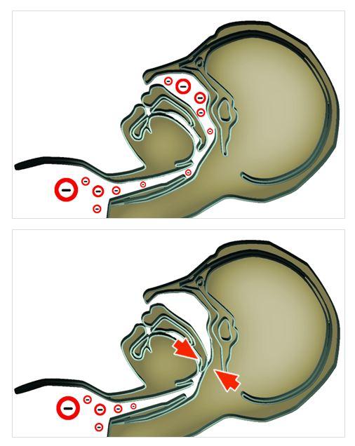 Схема нарушения дыхания