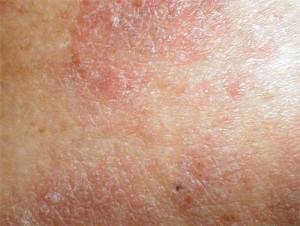 Tratamento de dermatite