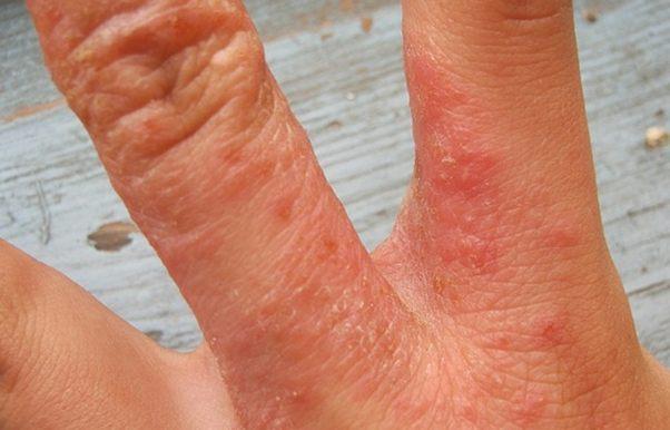 фото болезни на руках