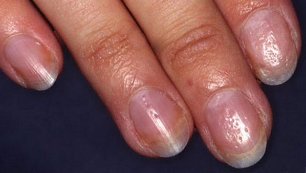причины ногтевого псориаза